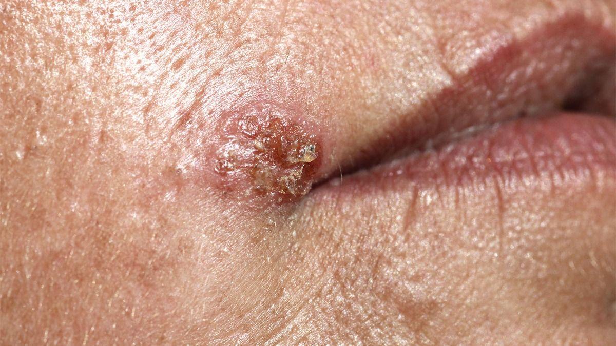 Paciente con herpes