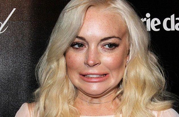 Lindsay Lohan pierde la mitad del dedo en accidente