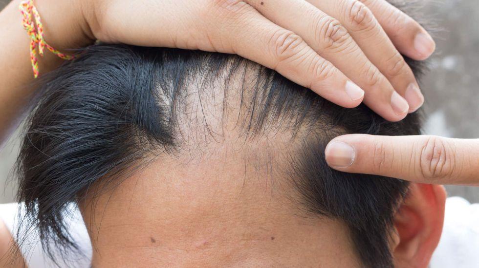 Dietas estrictas pueden provocar alopecia - Foto de The Harley Street Dermatology Clinic