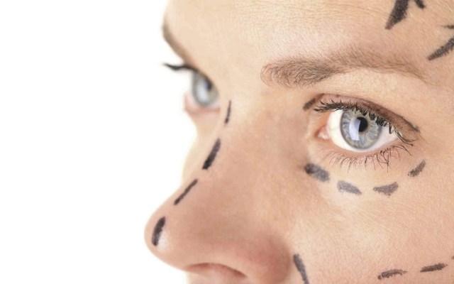 En Brasil, 12 mil médicos realizan cirugías estéticas sin licencia - Foto de Quadratín