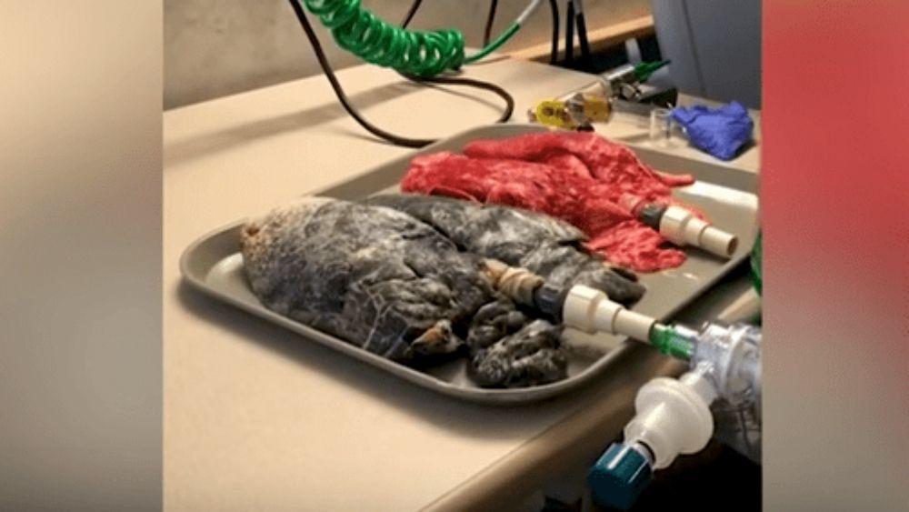 Pulmón afectado por cáncer. Foto de Youtube