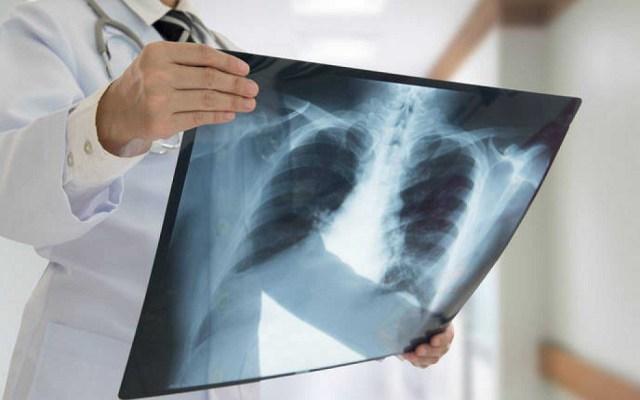 Cáncer de pulmón, el más mortal de América Latina - Cáncer de pulmón. Foto de Internet