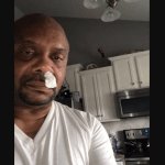 Hombre descubre que su escurrimiento nasal era líquido cefalorraquídeo - Foto de ABC