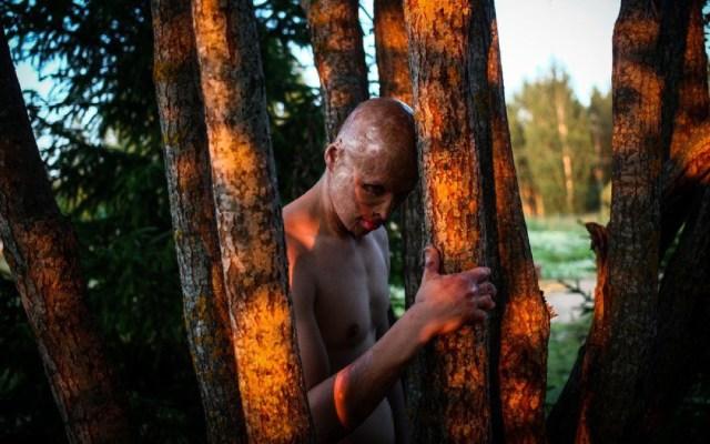 El niño que sobrevivió a ser metido en un horno por su padre - Foto de Pavel Volkov/BBC