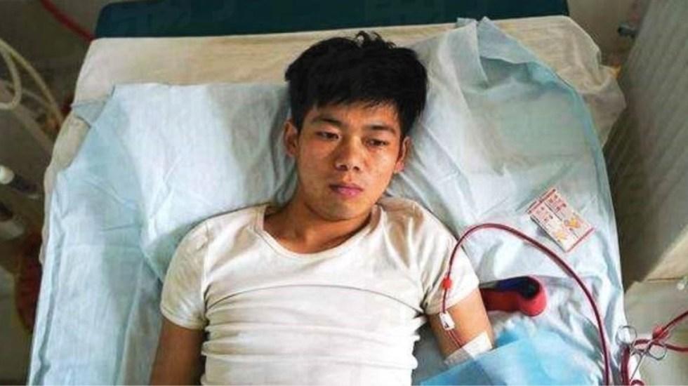 Vendió su riñón para comprar un iPhone y ahora necesita diálisis de por vida - Foto de Oriental Daily