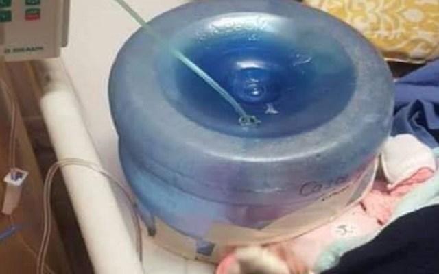 Usan garrafón como incubadora en hospital de Sonora - Garrafón como incubadora puesto a una bebé en Sonora. Foto de Facebook