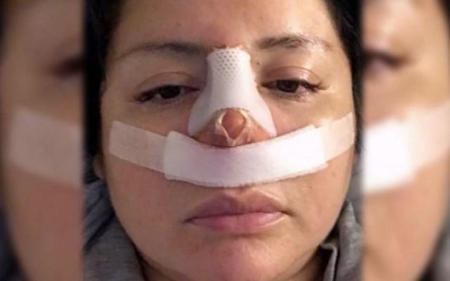 Viaja a Perú por una liposucción y le hacen una rinoplastia - Captura de pantalla/E! Entertainment