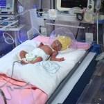 Nacen quintillizos en hospital del IMSS - Nacieron tres mujeres y dos hombres, de menos de dos kilos de peso. Foto de IMSS