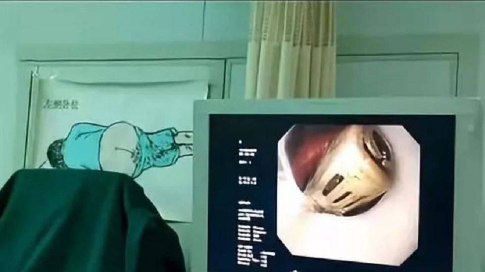 #Video Extraen encendedor a joven que se lo tragó - Gastroscopia a joven. Captura de pantalla
