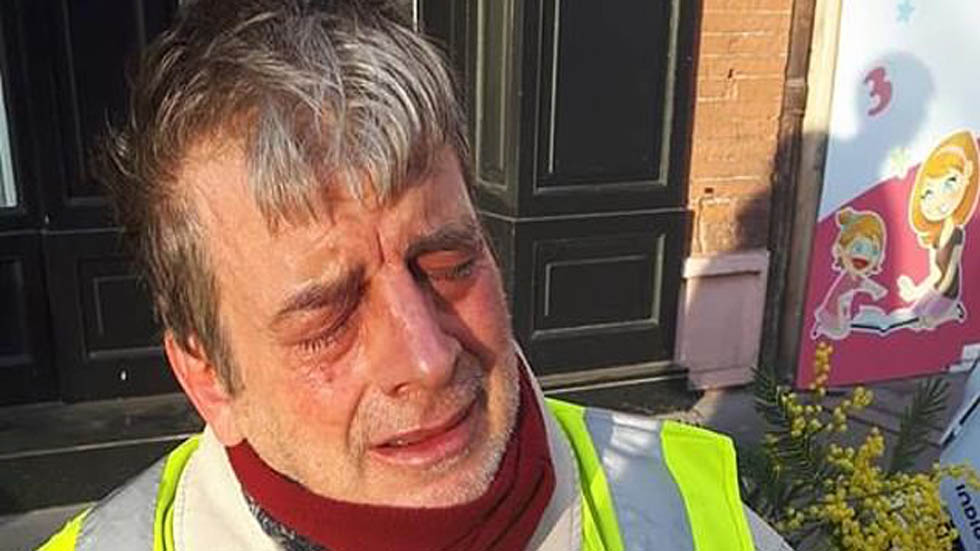 Víctima con los ojos enrojecidos. Foto de Daily Mail
