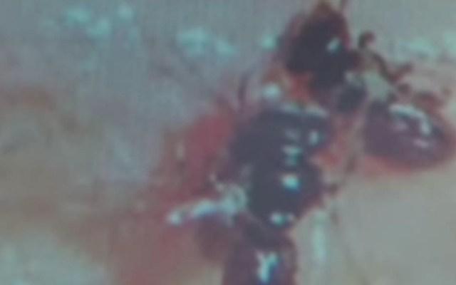 Hallan cuatro abejas viviendo en el ojo de una mujer en Taiwán - abejas