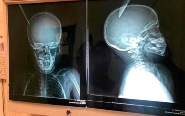 Niño de ocho años apuñala en la cabeza a menor de cinco en Sonora - niño apuñalado sonora