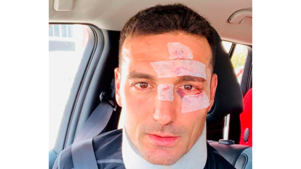 Dan de alta a Lionel Scaloni tras ser atropellado - Foto de @lioscaloni
