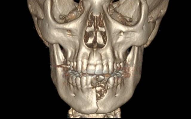 Cigarro electrónico explota y le rompe la mandíbula a joven - Mandíbula cigarro electrónico accidente