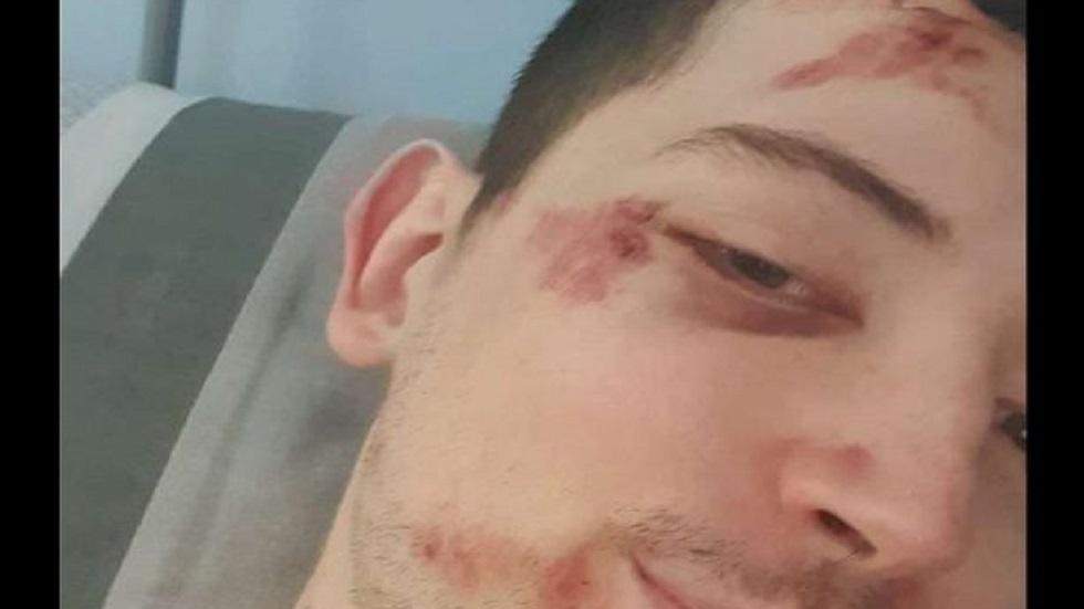 Lesiones a Kyle, amigo de Gabrielle. Foto de manchestereveningnews