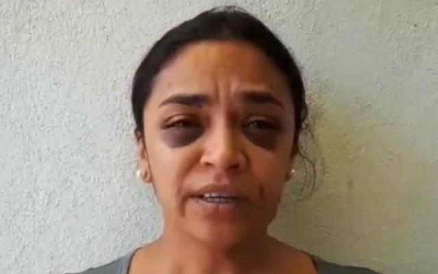 CNDH condena agresión policiaca a reportera de Morelia - Reportera Mitzi Yanet Torres. Captura de pantalla