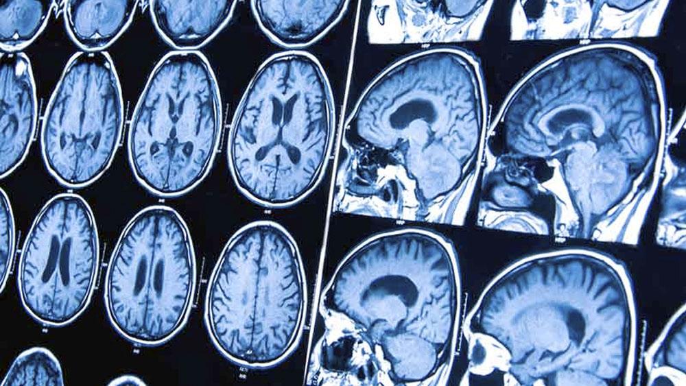 Científicos hallan en ratones cómo neutralizar letal tumor cerebral - tumor cerebral