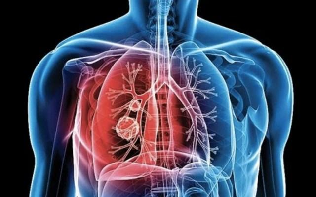 Tuberculosis se puede transmitir en estado de latencia: científicos - tuberculosis