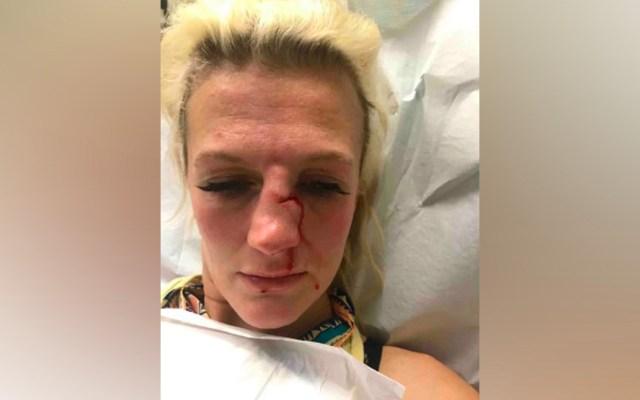 Peleadora de artes marciales mixtas sufre brutal ataque por parte de su exnovio - Ataque a peleadora de MMA