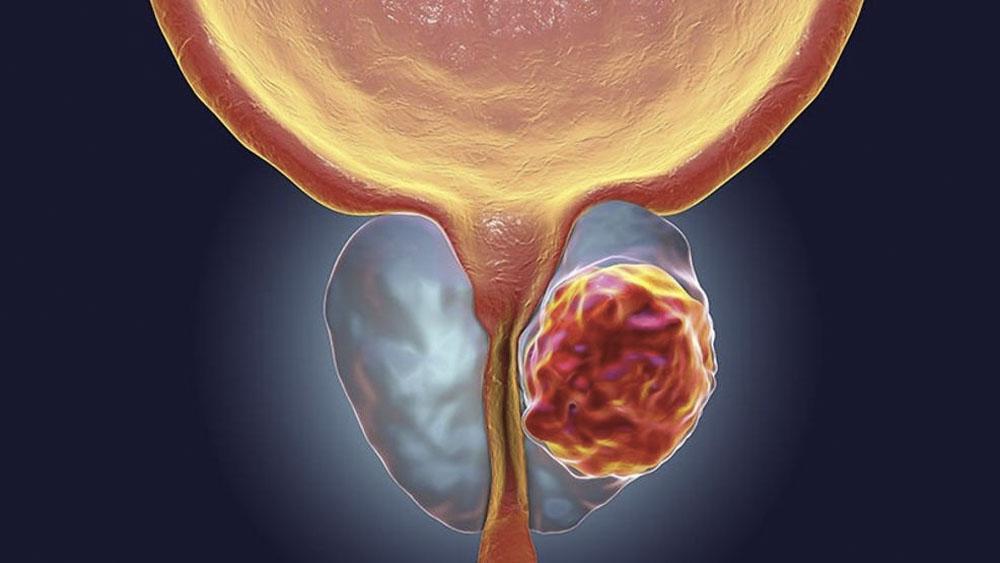 Cáncer de próstata, primera causa de muerte por neoplasias en México - Cáncer de próstata