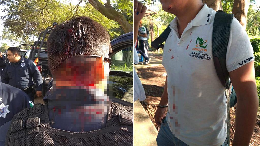 Policía y alumno herido en bloqueo de carretera de Tabasco. Foto de @eledenmx17