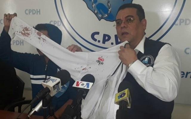 Raptan a menor en Nicaragua y le marcan consignas sandinistas en los brazos - Foto de CPDH Nicaragua