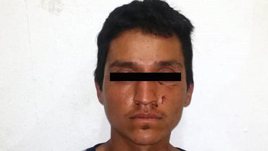 Detienen a hombre por prender fuego a su novia en Edomex - Jesús N., detenido por feminicido en grado de tentativa. Foto de @FiscalEdomex
