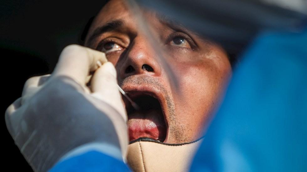 Suman 79.2 millones de casos y 1.75 millones de muertos por COVID-19 a nivel mundial: OMS - COVID-19 prueba test