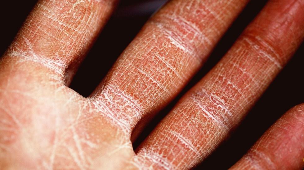 Un 20 por ciento de enfermos de COVID-19 padecen alteraciones en la piel - Alteración de la piel en mano. Foto de  Sharon McCutcheon / Unsplash