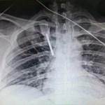 Clavan desarmador a médico residente en Monterrey durante asalto en inmediaciones de hospital