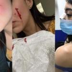 """Novia de presunto asesino de Rodolfo Corazón revela agresión del perro; """"no soy cómplice"""" del asesinato, afirma"""