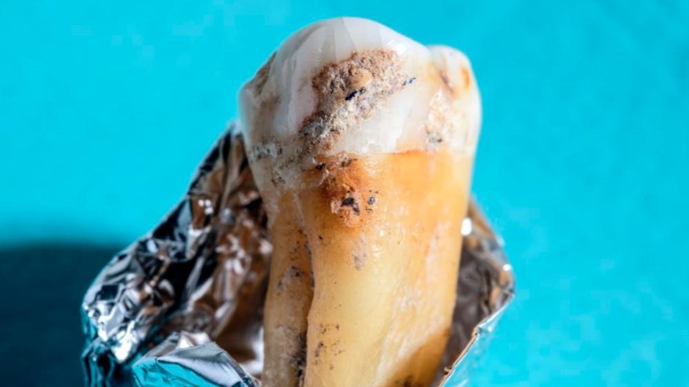 Reconstruyen la sorprendente evolución de nuestras bacterias orales - diente antiguo bacterias
