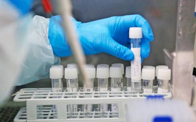 Científicos descubren método para bloquear infección del coronavirus - científicos tratamientos coronavirus