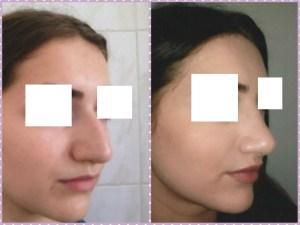 Изменение формы носа Краснодар