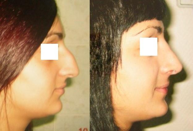 Фотография «до и после» ринопластика