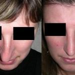 исправление формы носа Краснодар