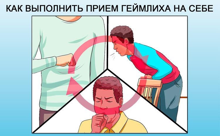Таблетка застряла в носоглотке что делать. Почему в горле застревает таблетка? Что делать, если в горле что-то застряло