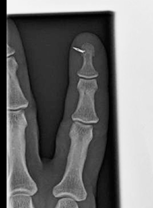 Xray Sewing Machine Needle in Index Finger