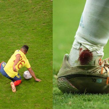 lionel messi tobillo colombia Copa América 2020 semifinal
