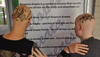 Alopecia Awareness through Bald Canvas Art