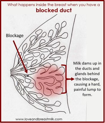 Blocked ducts anatomy