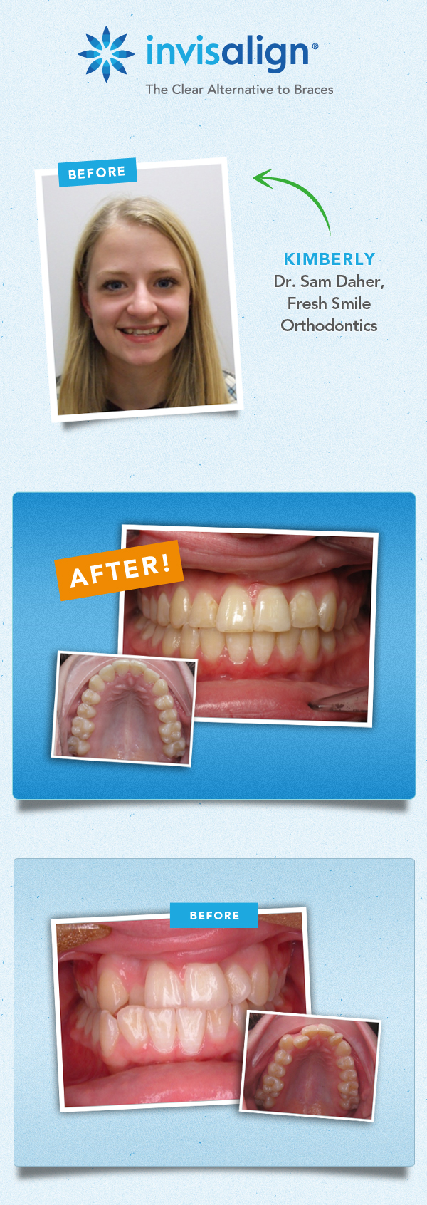 invisalign results fix crooked teeeth_kimberly