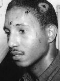 Bernard LaFayette, showing his injures after an attack that was supposed to end in his lynching. But it didn't go that way.