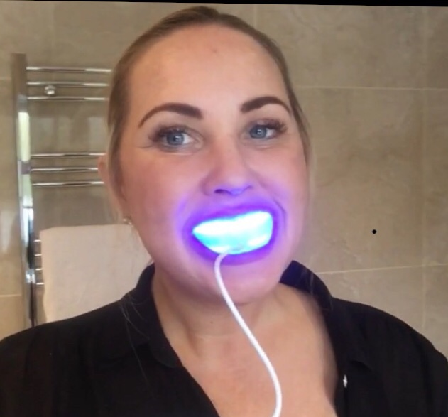 Teeth Whitening Kit - WhitenGo