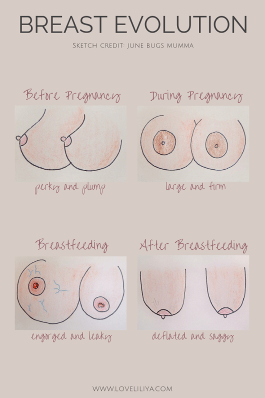 BreastEvolution