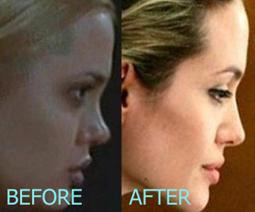 Angelina Jolie Plastic Surgery
