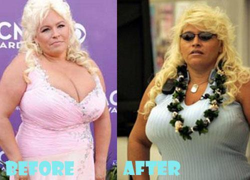 Beth Chapman Plastic Surgery Tummy Tuck