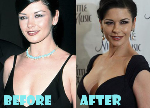 Catherine Zeta Jones Plastic Surgery Boob Job