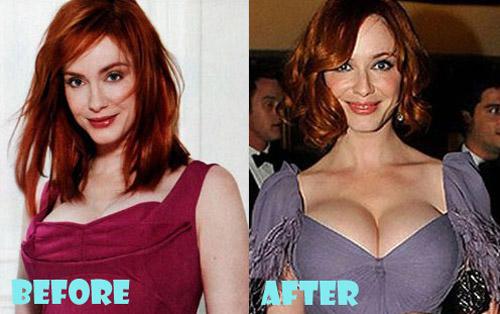 Christina Hendricks Plastic Surgery Breast Implant