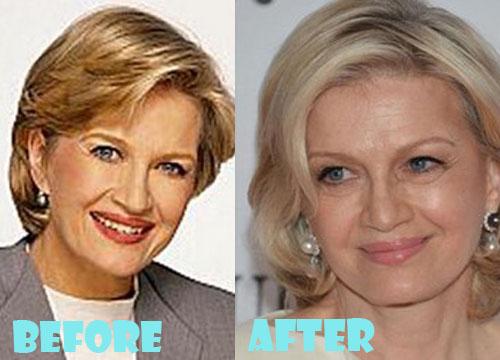 Diane Sawyer Plastic Surgery Facelift, Botox